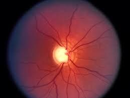 Imagem da notícia: Tratar Glaucoma com lentes de contacto?