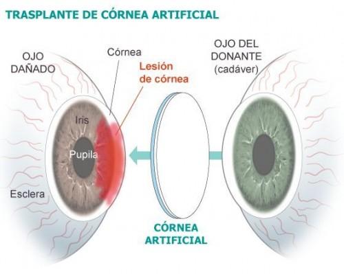 Imagem da notícia: Inovação em Oftalmologia a partir da Península Ibérica