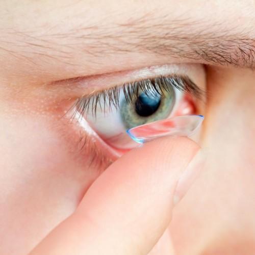 """Imagem da notícia: Lentes de contacto """"incompatíveis"""" com conjuntivite alérgica"""