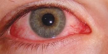Imagem da notícia: Alergia ocular e a síndrome do olho seco