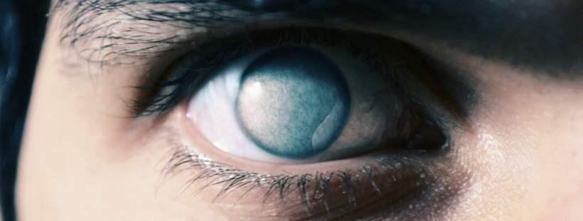 Imagem da notícia: Alcon compromete-se a reduzir casos de cegueira mundialmente