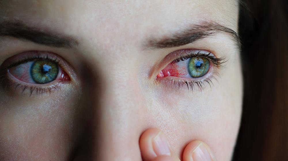 Imagem da notícia: Conjuntivite alérgica atinge 20% dos portugueses