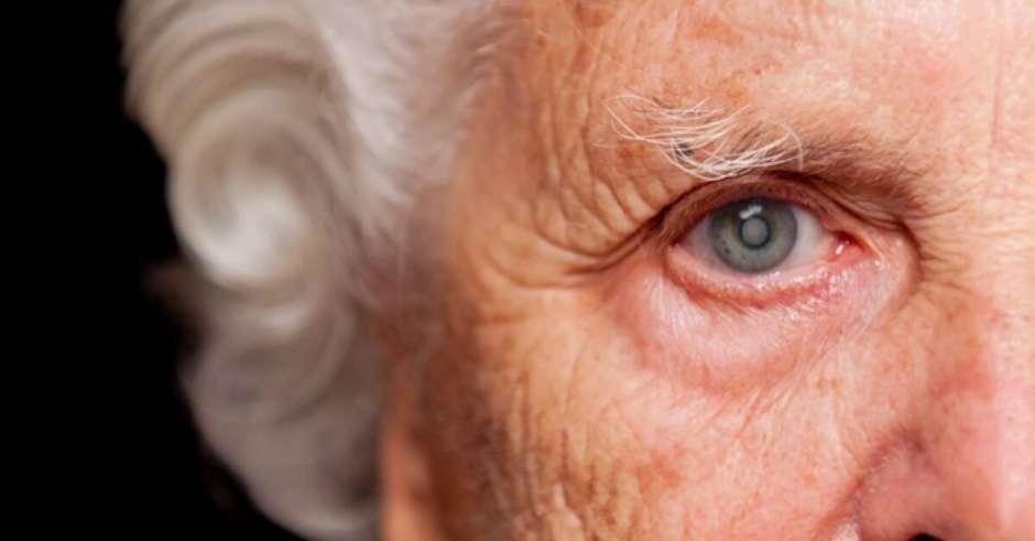 Imagem da notícia: 95% dos idosos sofre de catarata