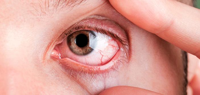 Imagem da notícia: Estudo: Sintomas Oculares durante o Confinamento