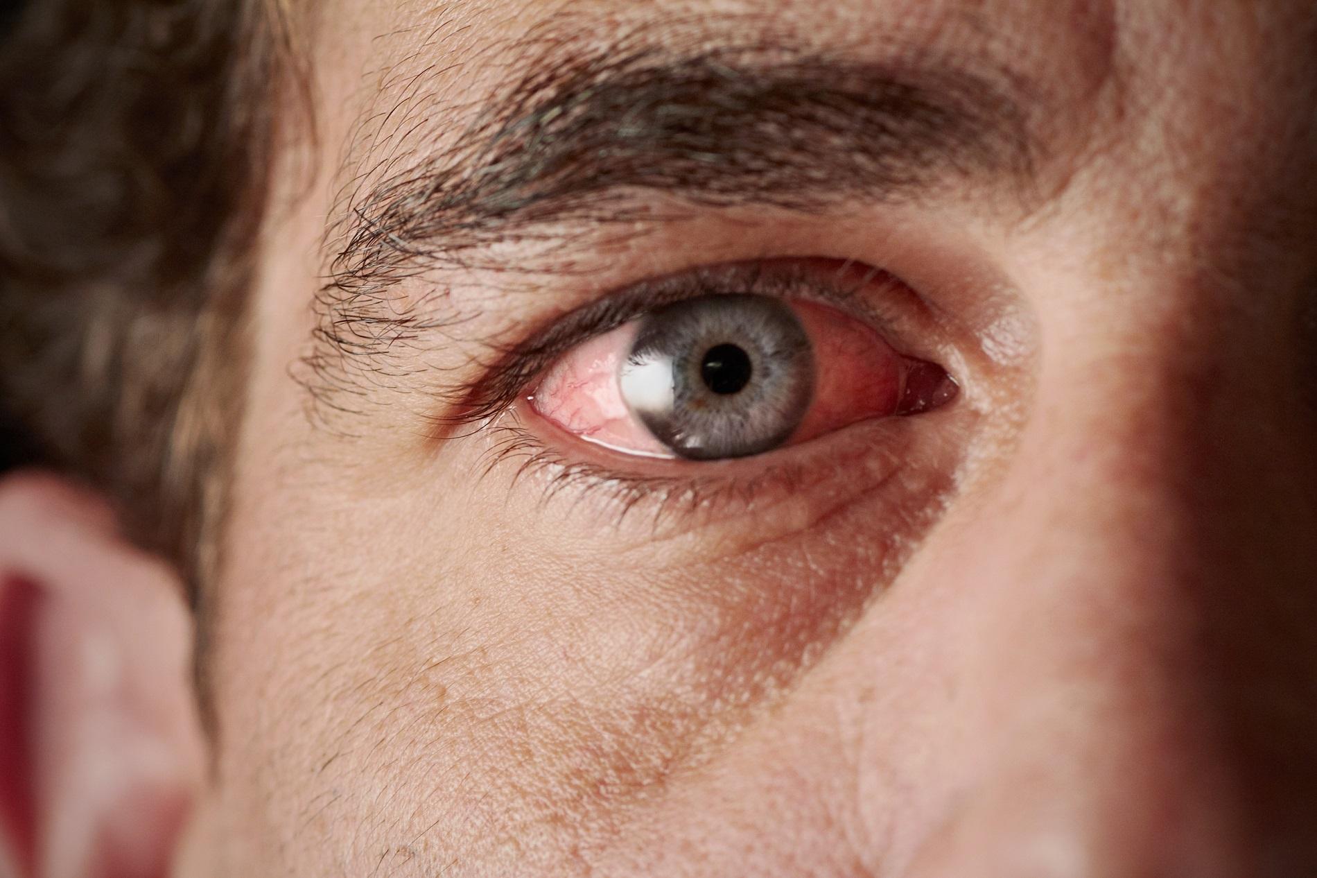 Imagem da notícia: Coronavírus também pode provocar conjuntivite?