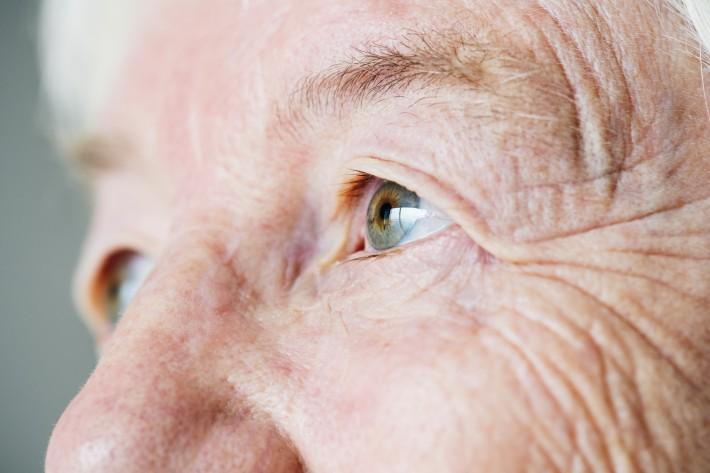 Imagem da notícia: Glaucoma: terapia com genes poderá regenerar nervo ótico