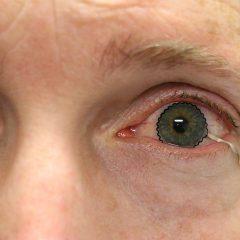 Imagem da notícia: Nova lente de contacto monitoriza doenças oculares